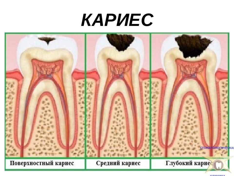 дифф диагностика некариозных поражений полости рта по-разному
