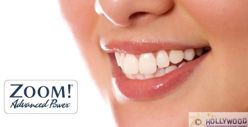 Отбеливание зубов системой ZOOM !!!